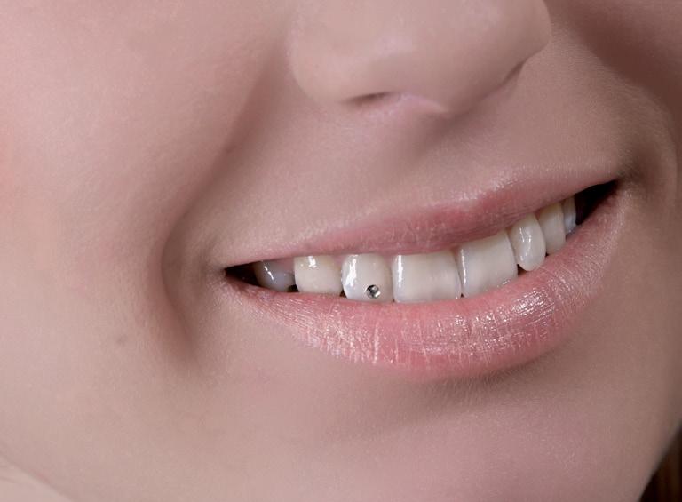 Estetska stomatologija – hir ili potreba